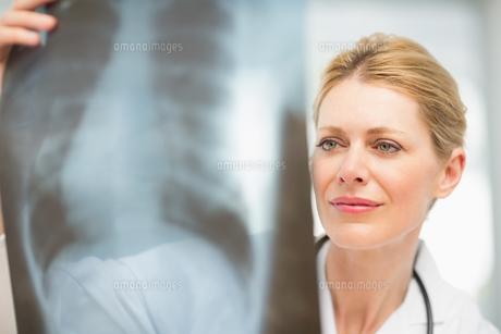 Doctor examining an xrayの写真素材 [FYI00000210]