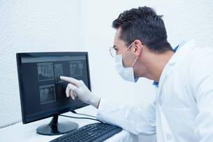 Dentist looking at x-ray on computerの写真素材 [FYI00003645]