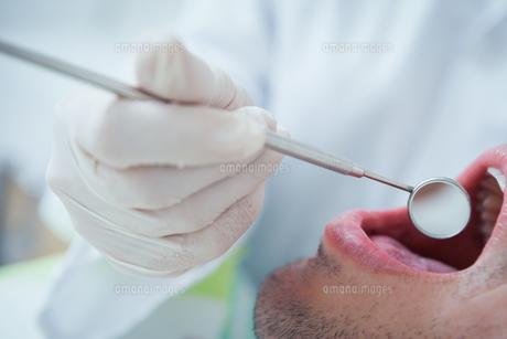 Close up of man having his teeth examinedの写真素材 [FYI00003646]