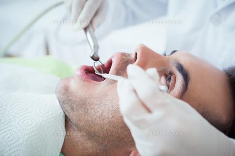 Close up of man having his teeth examinedの素材 [FYI00003647]