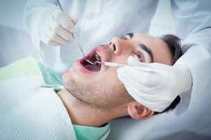 Close up of man having his teeth examinedの写真素材 [FYI00003648]