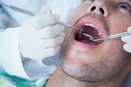 Close up of man having his teeth examinedの写真素材 [FYI00003652]