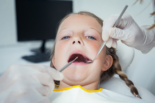 Close up of girl having her teeth examinedの写真素材 [FYI00003654]