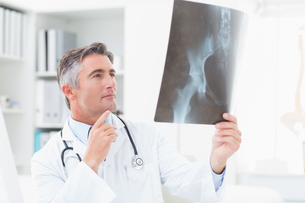 Doctor analyzing x-ray in clinicの写真素材 [FYI00005774]
