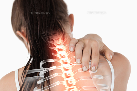 Highlighted spine of woman with neck painの素材 [FYI00006283]