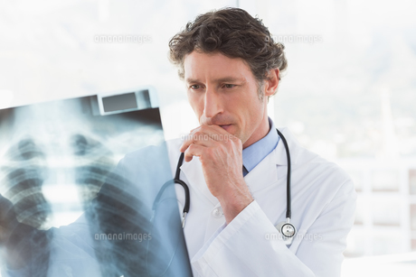 Serious doctor looking at X-rayの素材 [FYI00007807]