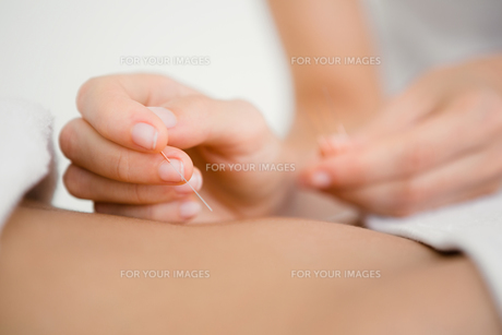 Woman holding a needle in an acupuncture therapyの写真素材 [FYI00008230]