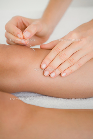 Woman holding a needle in an acupuncture therapyの素材 [FYI00008241]