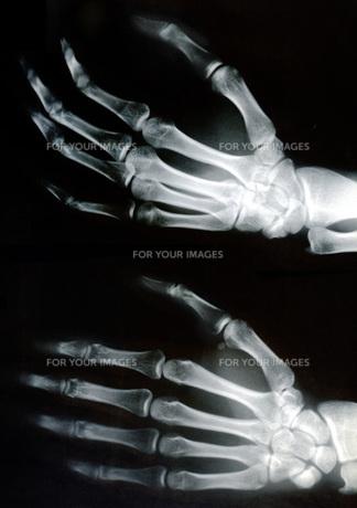 レントゲン 左手の写真素材 [FYI00061754]