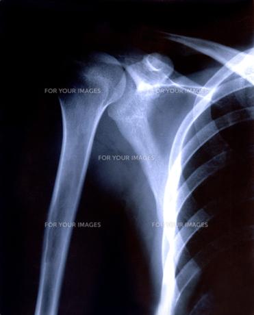 レントゲン 肩・胸部の素材 [FYI00061763]