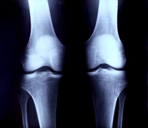 レントゲン 膝の関節 後部の写真素材 [FYI00061764]