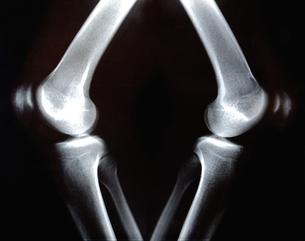 レントゲン 膝の関節の写真素材 [FYI00061766]