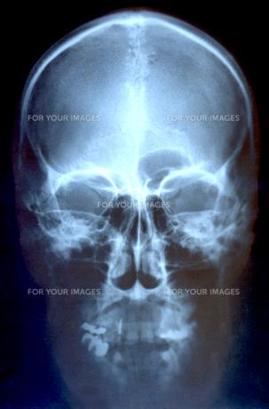 レントゲン 頭部の写真素材 [FYI00061777]