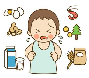 子供とアレルゲンの写真素材 [FYI00075547]