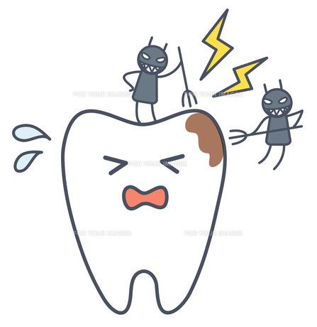 虫歯の写真素材 [FYI00075562]