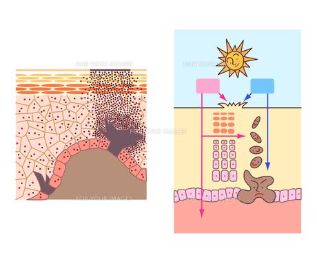 皮膚の断面図としみのメカニズムの素材 [FYI00136064]