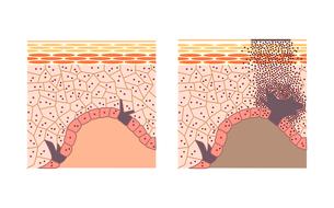 シミのメカニズム・皮膚の断面図の写真素材 [FYI00136066]