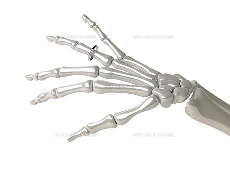 マリッジリングと骨の写真素材 [FYI00166513]