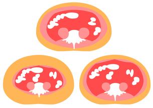 内臓脂肪と皮下脂肪の断面図の素材 [FYI00206509]