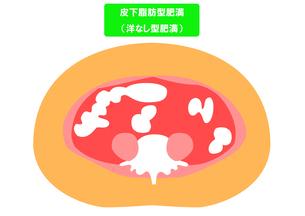 内臓脂肪と皮下脂肪の断面図の素材 [FYI00206521]