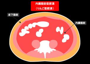 内臓脂肪と皮下脂肪の断面図の素材 [FYI00206526]