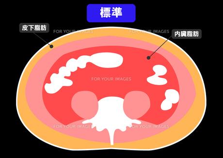 内臓脂肪と皮下脂肪の断面図の素材 [FYI00206532]