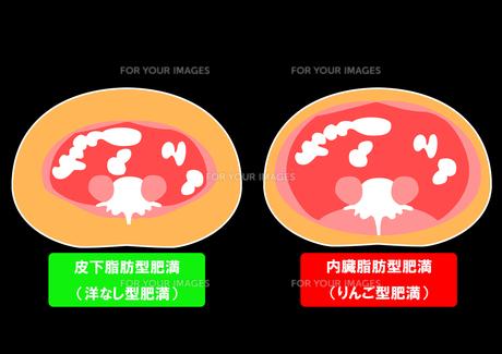 内臓脂肪と皮下脂肪の断面図の素材 [FYI00206536]