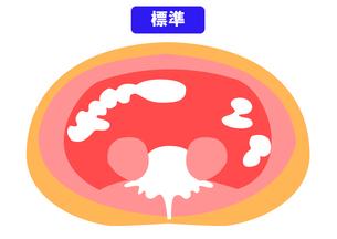 内臓脂肪と皮下脂肪の断面図の素材 [FYI00206545]
