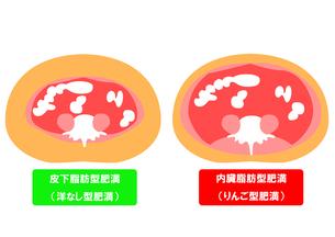 内臓脂肪と皮下脂肪の断面図の素材 [FYI00206554]