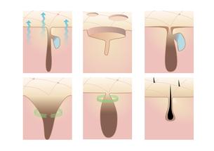 皮膚の真皮層と毛穴の写真素材 [FYI00250857]