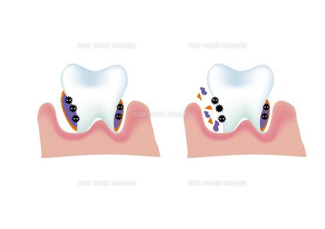 歯周バリアの写真素材 [FYI00250861]