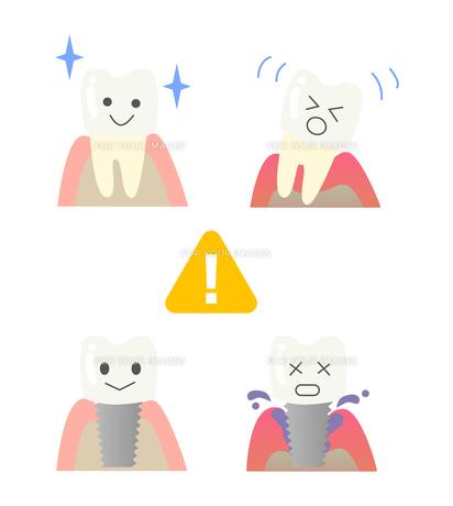 歯周病と歯のインプラントの写真素材 [FYI00250868]