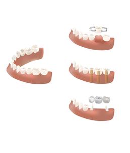 歯のインプラントとブリッジの写真素材 [FYI00250877]