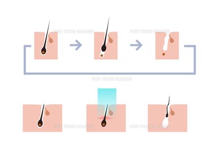 レーザー脱毛周期図の素材 [FYI00250878]