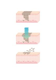 皮膚の真皮層のシミ治療の素材 [FYI00250911]