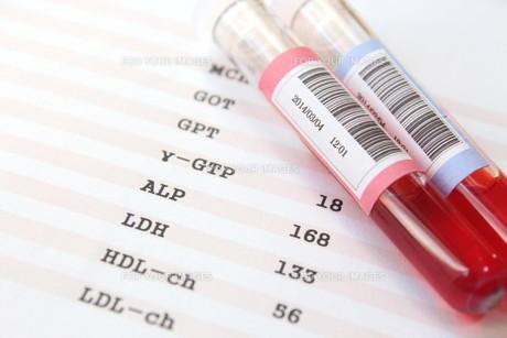 健康診断 血液検査の写真素材 [FYI00259067]