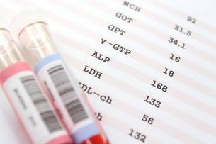 健康診断 血液検査の写真素材 [FYI00259072]