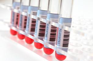健康診断 血液検査の写真素材 [FYI00259074]