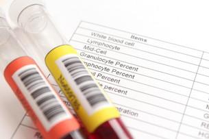 健康診断 血液検査の写真素材 [FYI00259076]