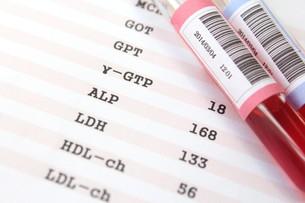 健康診断 血液検査の写真素材 [FYI00259082]