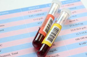 健康診断 血液検査の写真素材 [FYI00259083]