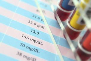 健康診断 血液検査の写真素材 [FYI00259085]