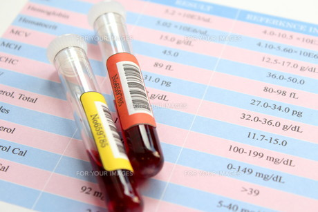 健康診断 血液検査の写真素材 [FYI00259087]