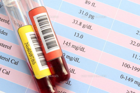 健康診断 血液検査の写真素材 [FYI00259088]