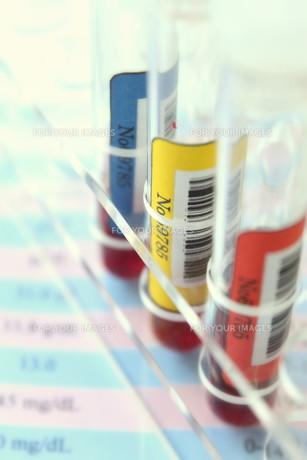 健康診断 血液検査の写真素材 [FYI00259089]
