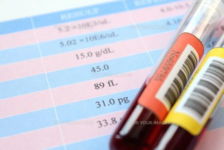 健康診断 血液検査の写真素材 [FYI00259091]
