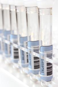 健康診断 血液検査の写真素材 [FYI00259098]