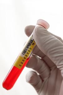 医療 血液検査イメージの写真素材 [FYI00259257]