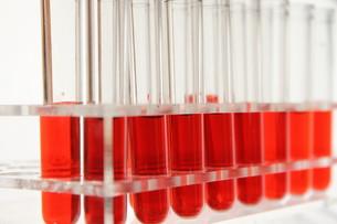 医療 血液検査イメージの素材 [FYI00259267]