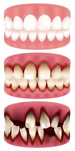 歯周病進行度の写真素材 [FYI00265806]